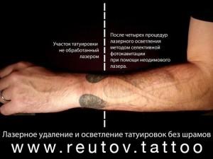 удаления-татуировок